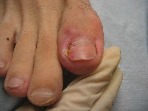 Чем лечить вросшие ногти у детей