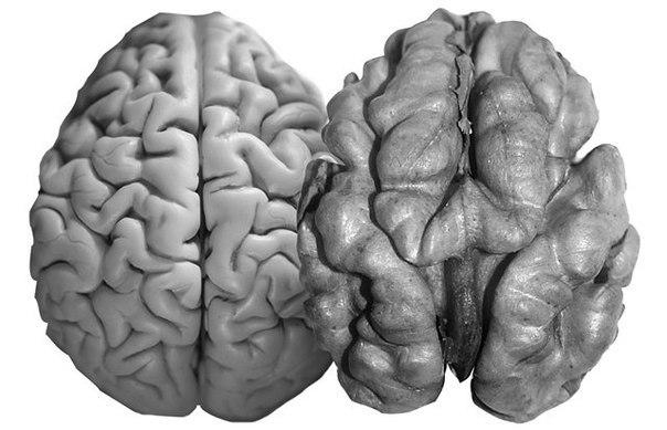 Как будто мозг сжимается
