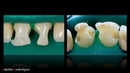 Препарирование центральных резцов верхней челюсти