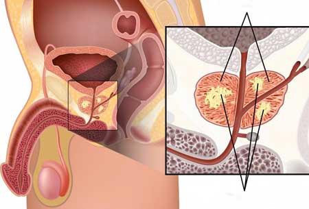 Исследования показывают, что прополис может убивать клетки рака простаты, сохраняя при этом здоровые клетки в такте.