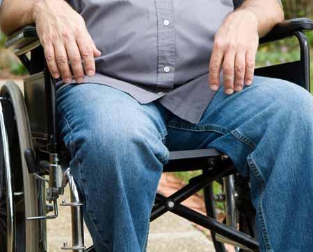 Некоторым пациентам, страдающим ревматоидным артритом, может потребоваться использование инвалидной коляски.