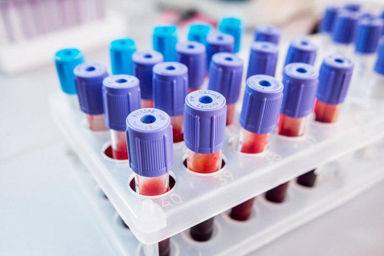 Анализы крови - это тип медицинского скрининга, который позволяет раннее выявление диабета и наличие высокого уровня холестерина в крови.
