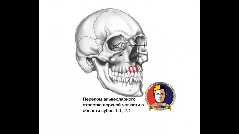 Челюстно лицевая хирургия Перелом альвеолярного отростка верхней челюсти в области зубов 1 1 2 1