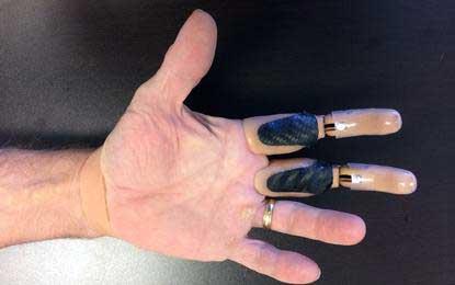 Сегодня производят натуральные протезы для пальцев.