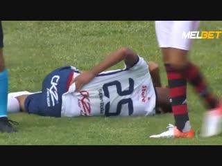 Медики переехали ногу и футболист сбил судью девушку