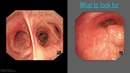 Mastering Bronchoscopy for Thoracic Surgery Chapter 4