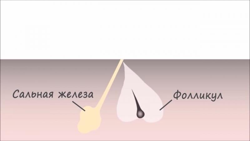 Порівняння шугарингу та воску