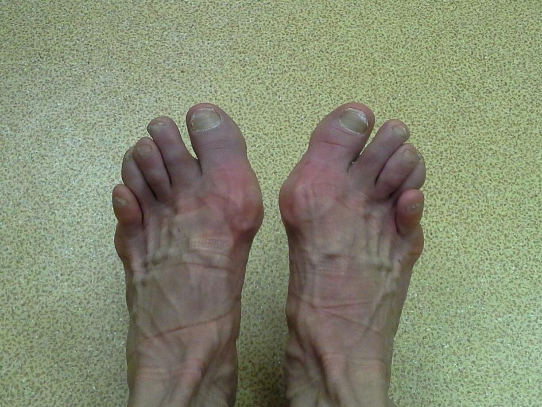 Фото пальцы на ножках 13 фотография