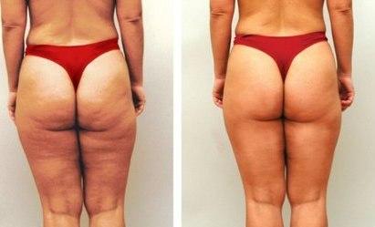 косметология как избавиться от черных точек