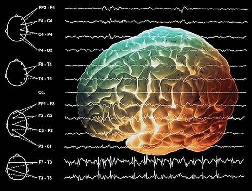 Ученные представили новое устройство, способное производить более точные измерения в деятельности головного мозга