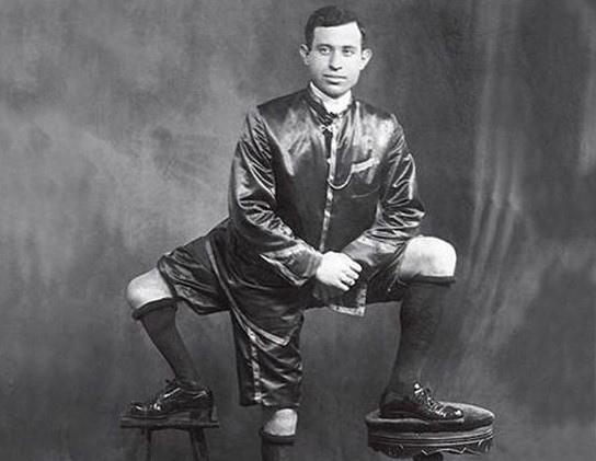 Трёхногий человек. Франческо Лентини обладатель очень редкой аномалии развития из острова Сицилия. Он родился в 1889 году с тремя ногами и двумя половыми органами, зарабатывал на жизнь, работая