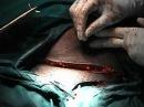 Caesarean Section: Closure of the abdomen