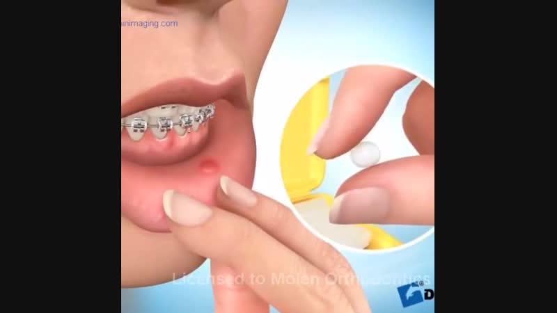 Воск для брекетов. Ортодонтический воск