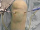 Артроскопия коленного сустава  Разрыв медиального мениска