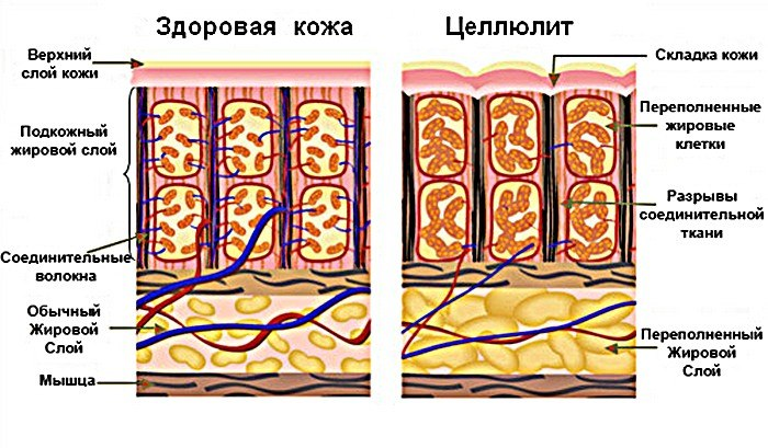борьба с целлюлитом, масло от целлюлита, как избавиться от целлюлита на ногах, средства от целлюлита, целлюлит на ногах и попе как избавиться,