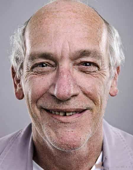 Протезы можно носить, если зубы пациента начинают выпадать.