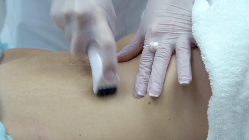 коррекция растяжек живота - укрепление и подтяжка кожи рук