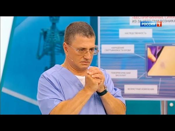 Как похудеть и удержать вес, синяки на теле, варикоз   Доктор Мясников