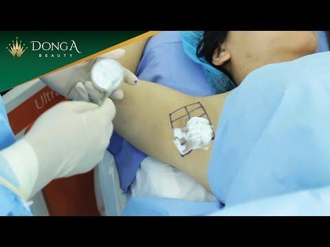 Quy trình trị hôi nách hiệu quả bằng Ultra Dry TMV Đông Á