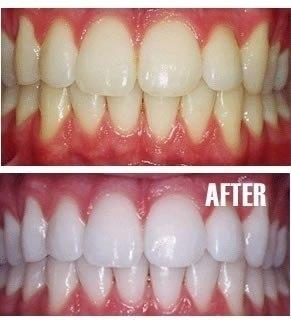 Zoom отбеливание зубов в волгограде