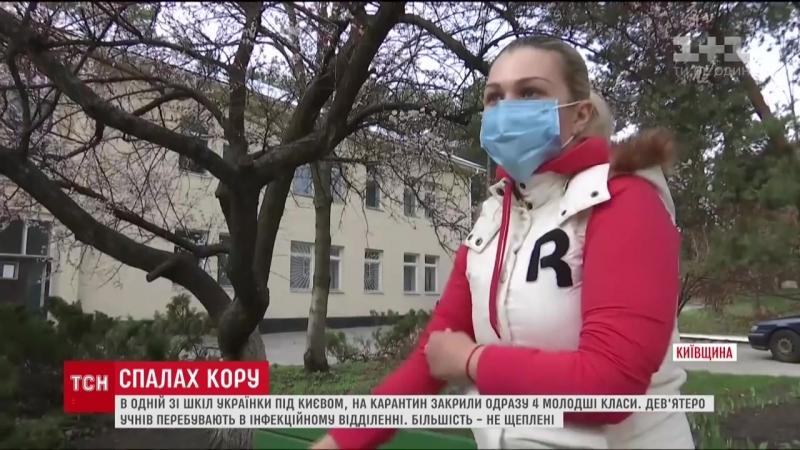 В Українці девятеро учнів потрапили до інфекційного відділення через спалах кору