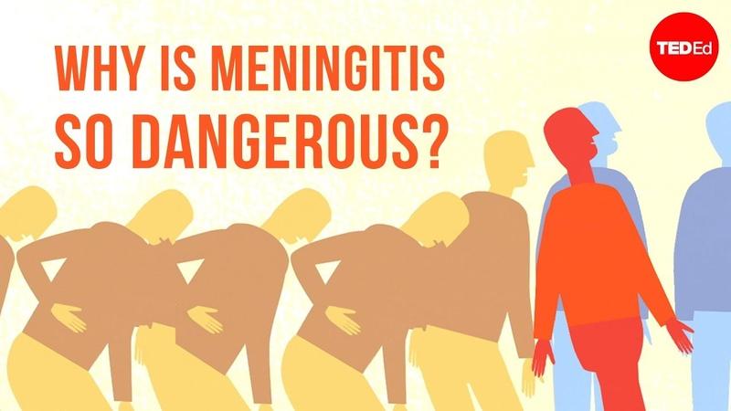 Why is meningitis so dangerous - Melvin Sanicas