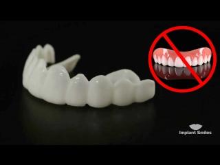 Implant Smiles в России!
