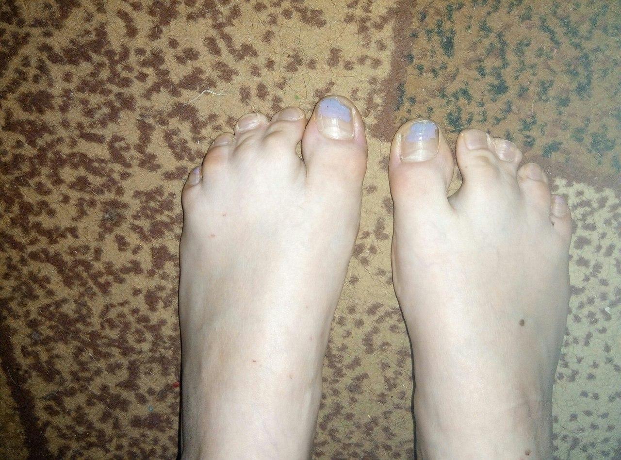 Ноги, плоскостопие и женская обувь