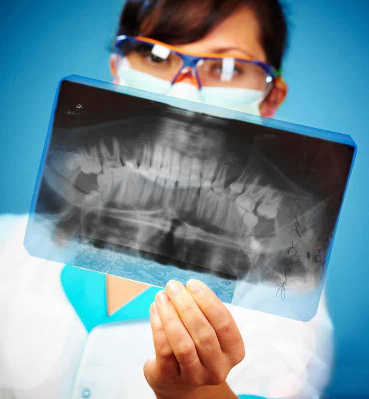 При правильном соблюдении гигиены полости рта фиксированный частичный протез может длиться до 8 или 10 лет.