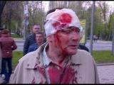 Новости Юго-Восток Украины.Избитый сепаратистами житель Донецка:Настоящий фашизм здесь,а не в Киеве