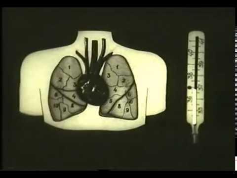 Лечение после выявления возбудителя пневмоний © Treatment of bacterial pneumonia, pneumonia