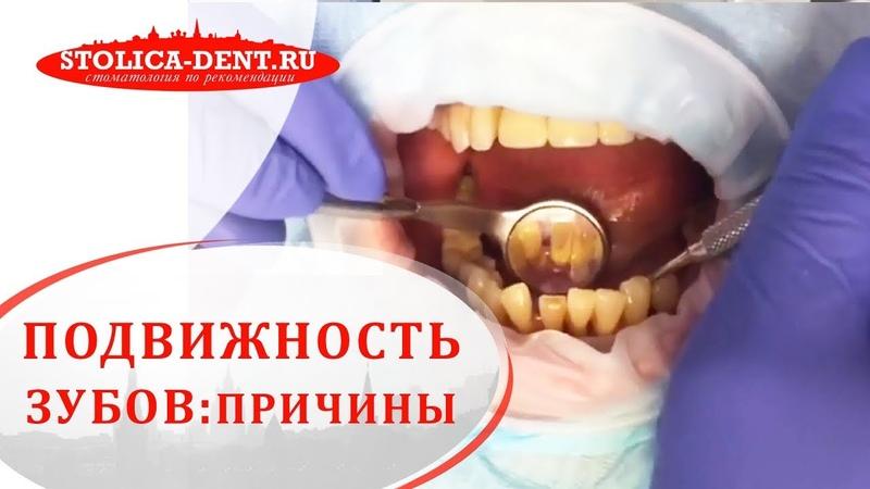 😬 Причины и способы устранения подвижности зубов Подвижность зубов Столица 12