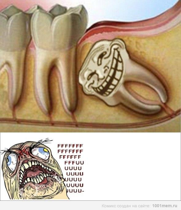 Зубы мудрости толкают соседние зубы 153