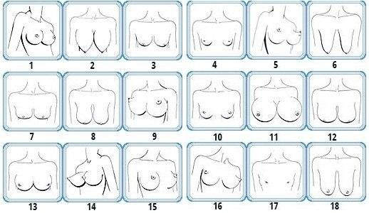виды форм груди фото