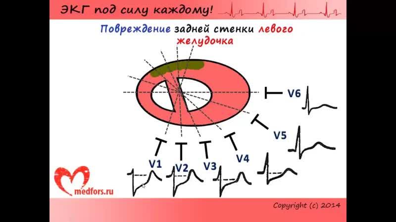 Видеокурс ЭКГ под силу каждому. Урок 10. ЭКГ при различных локализациях инфаркта миокарда. КНИГА
