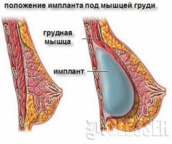 Увеличение груди клиники германии