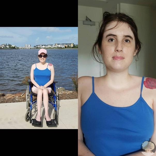 27-летняя Холли Варлэнд из Австралии ежедневно документирует, как умирает её тело. У девушки мышечная дистрофия, которая постоянно прогрессирует. Это приведёт к тому, что уже через несколько лет Холли будет полностью обездвижена.