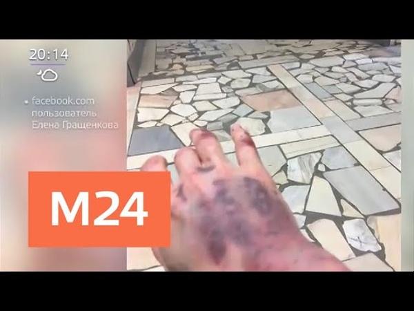 Таксист сломал пассажирке нос и ногу после замечания Москва 24