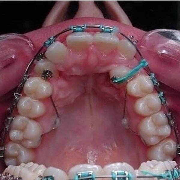 Вытягивание дистопированных клыков у пациента В стоматологии довольно распространенной аномалией является дистопия клыков (когда для них не хватает места или зуб занимает неправильное