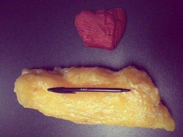 Вот как выгдядит 1.5 кг жира и 1.5 кг мышц