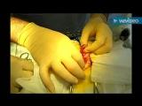 Операция по удалению инородного тела из кишечника кошки