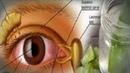 Чёткое зрение вернётся через 4 дня Об этом не знает 99% населения