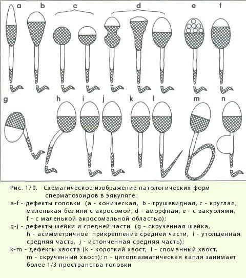 muzh-sdaval-spermogrammu