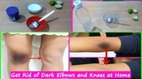 How to Lighten Dark Elbows and Knees