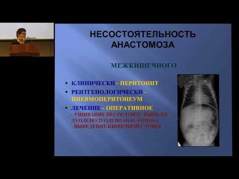 19.02.2017 - Возможные послеоперационные осложнения у новорожденных с хирургической патологией