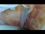 Вскрытие гнойного артрита коленного сустава.