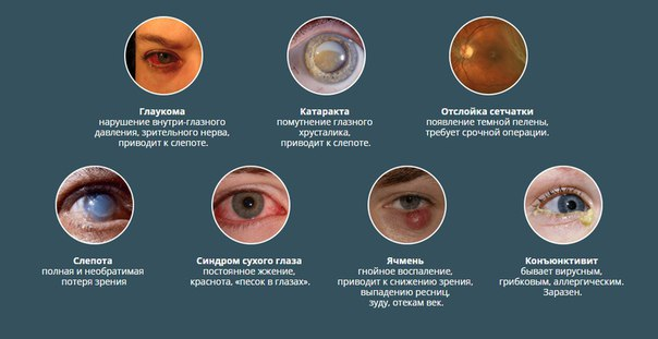 ? Плохое зрение - это актуальнейшая проблема, которой страдают 75% нашего населения. Нельзя преуменьшать риски, которым вы подвергаетесь. Аварии на дорогах случаются в 30% случаев из-за плохого зрения. Если ваш ребенок потеряется в толпе, вам будет сложно