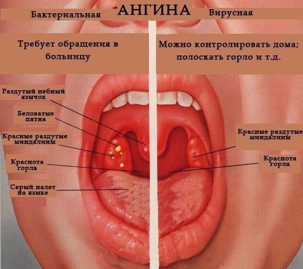 Как лечить ангину у детей 2 года