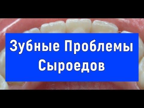 Сыроедение - Зубы - Проблема - Юрий Фролов