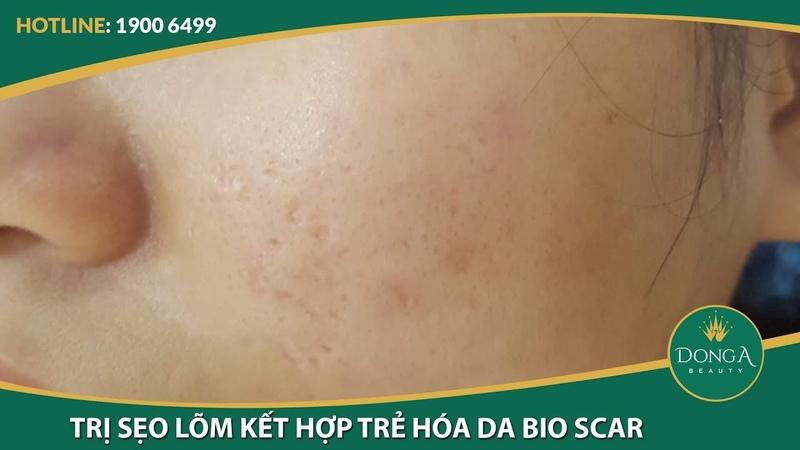Làn da căng mịn với liệu trình điều trị sẹo lõm và trẻ hóa da Bio Scar - YouTube